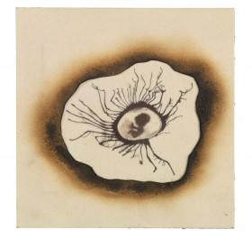 Siebdruck eines menschlichen Embryos in schwarz-weiß